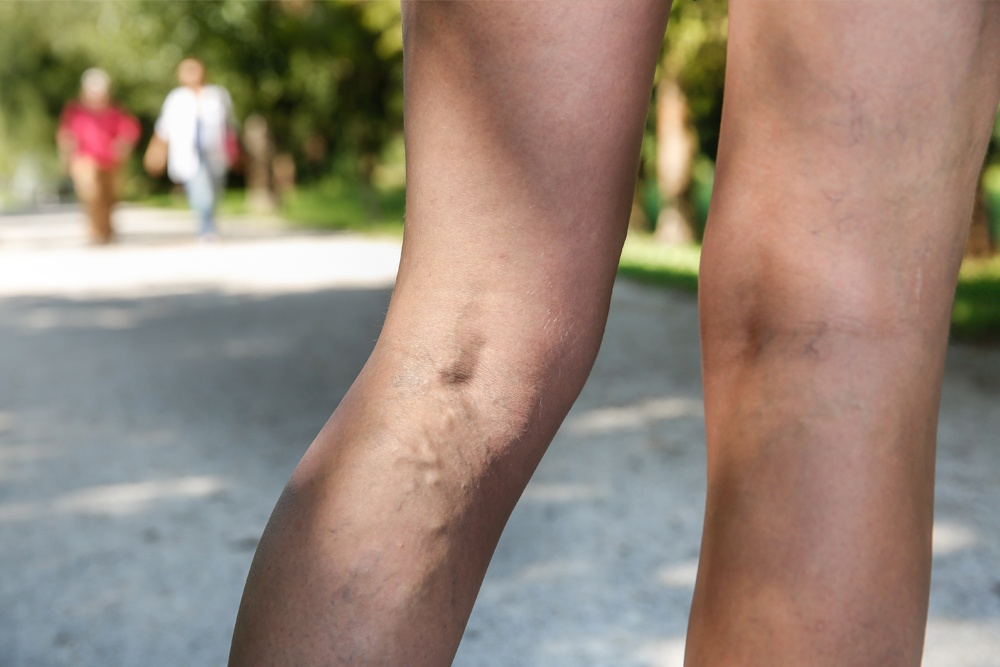 woman-with-varicose-veins-at-a-park