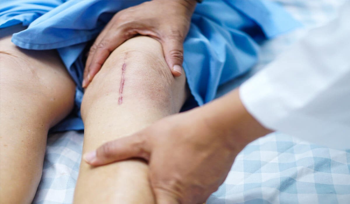 Knee replacement surgery patient